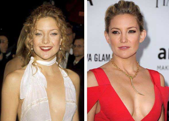 Kate-Hudson-breast