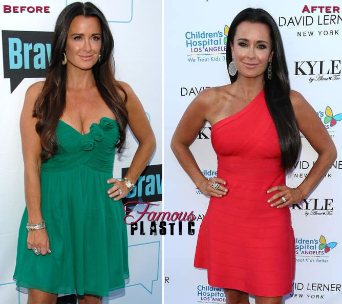 kylerichards